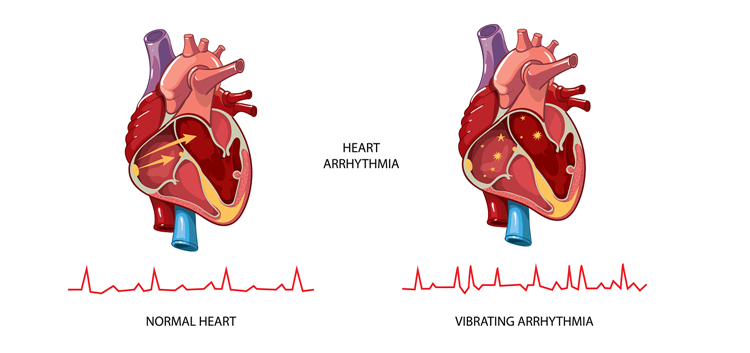 Heart Arrythmia Guide e-Book